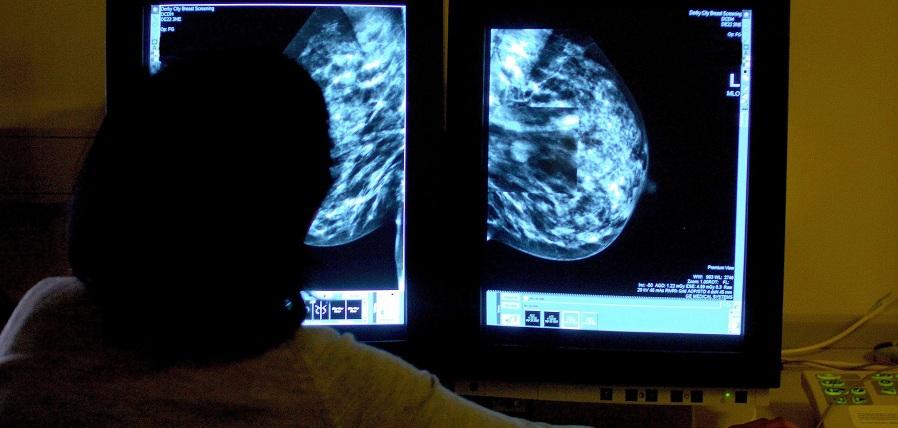 زنان مبتلا به سرطان سینه باید به مدت ۱۰ سال دارو مصرف کنند