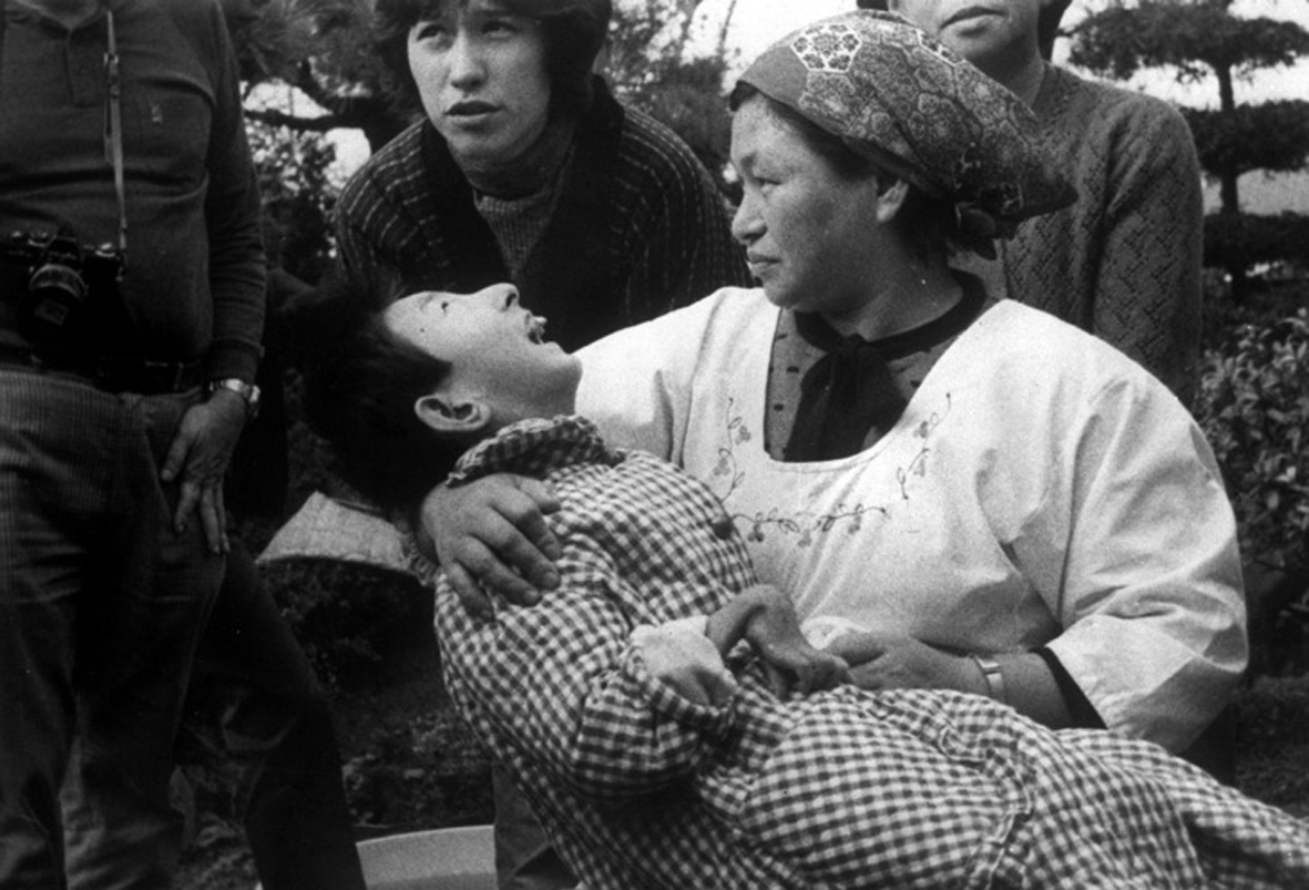 "A woman holds a victim of ""Minamata Disease"", or mercury poisoning, in Minamata, Japan, in 1973. The girl has a malformed hand, like many victims of the disease who suffer from physical deformites among other symptoms. Chisso Corporation, a Japanese fertilizer and carbicle company, and later a petrochemical and plastics company, dumped an estimated 27 tonnes of mercury compounds into Minamata Bay between 1932 and 1968. (AP Photo)"