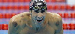 راهحل سنتی ستارهها برای تسکین درد؛ بادکش در المپیک