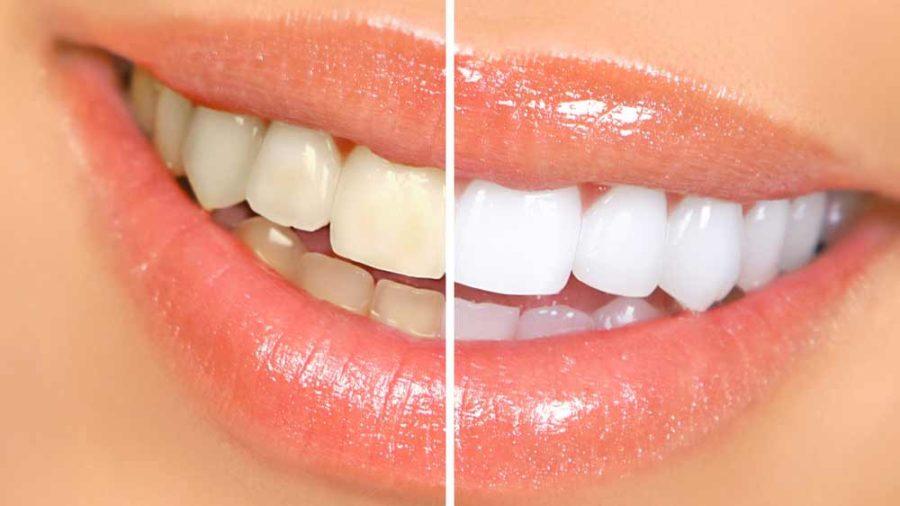 ۱۰ راهکار خانگی برای سفیدکردن دندان ها با مواد طبیعی