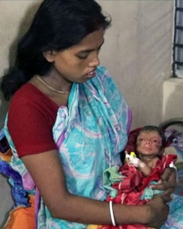 pay-a-baby-boy-who-was-born-with-a-condition-called-progeria-in-bangladesh-3-w600