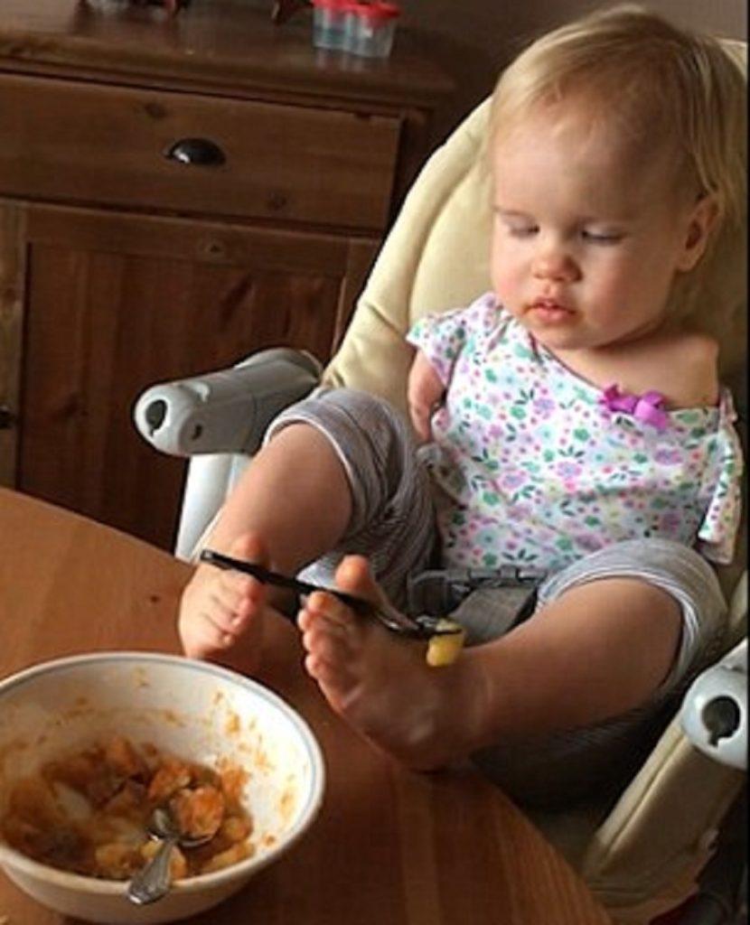 غلبه بر ناتوانی؛ خردسالی که بدون دست متولد شده اکنون با پاهایش غذا می خورد [تماشا کنید]