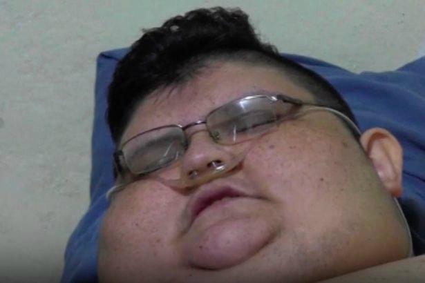 32-year-old-juan-pedro-weighs-500-kilos-w700