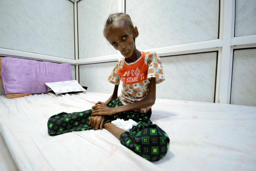 «سایدا احمد بقیلی» دختر 18 ساله ای که از سوءتغذیه شدید رنج می برد روی تخت بیمارستان در یکی از شهرهای یمن نشسته است. 24 اکتبر