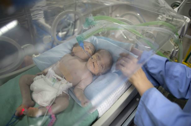one-day-old-palestinian-conjoined-twin-b-1-w700