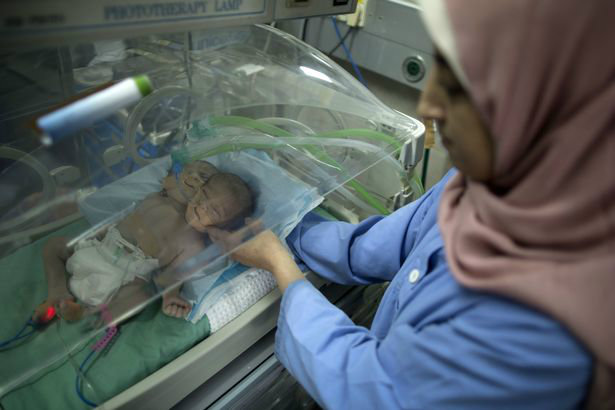 one-day-old-palestinian-conjoined-twin-b-2-w700