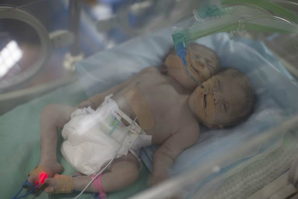 one-day-old-palestinian-conjoined-twin-b-3-w700