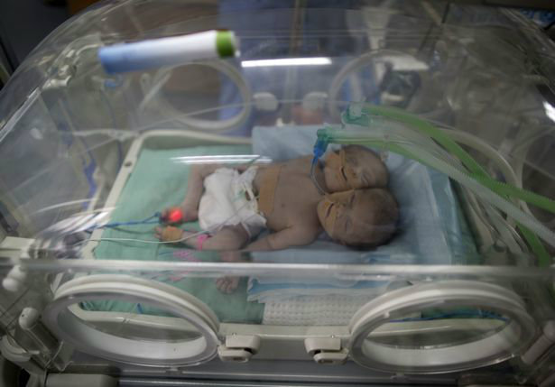 one-day-old-palestinian-conjoined-twin-b-w700