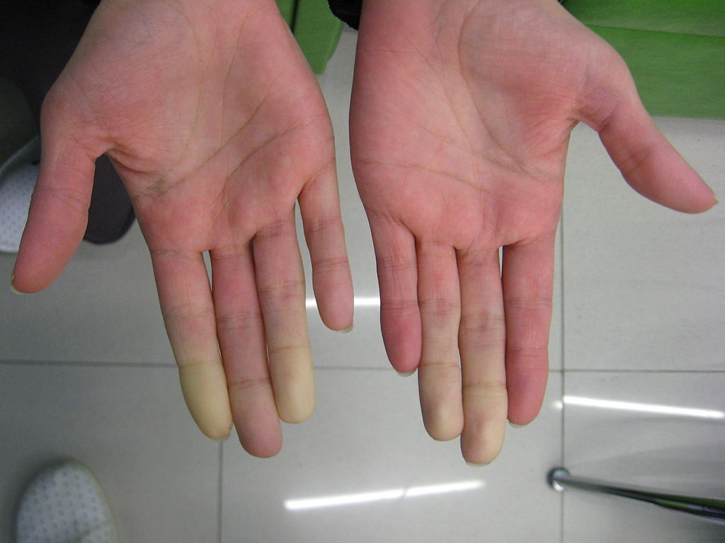 secondary_raynauds_in_sjogrens_syndrome_1