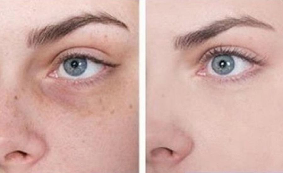 ۱۰ راهکار خانگی برای داشتن پوستی صاف و براق