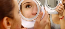 دلایل ظاهر شدن آکنه بر روی پوست صورت و روش های درمان آن