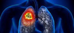 با شایع ترین نشانه های سرطان ریه آشنا شوید