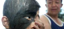 a98421_birthmark_7-face