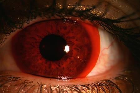 لنزهای کمپانی «نایک مکس سایت» عموما بسیار کاربردی و البته عجیب هستند. به طور مثال، این لنز قرمز رنگ که گویی چشمان فرد در خون غرق شده، مخصوص دوچرخه سوارها و موتور سوارها طراحی شده تا چشمان آن ها را در برابر اثرات منفی تابش خورشید در جاده محافظت کند.