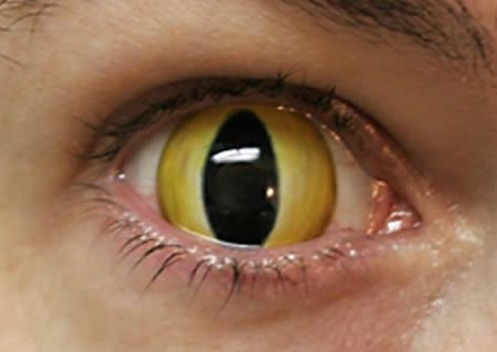 چشم گربه ای
