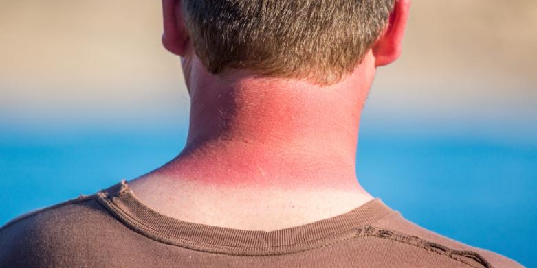 مشکلات رایج پوستی در فصول گرم سال و راهکارهای درمان آنها