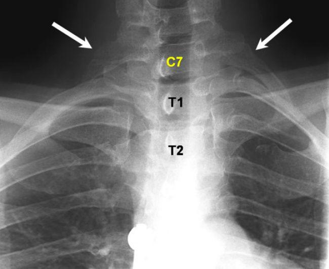 12709510-Cervical-ribs-at-C7-Plain-antero-posterior-radiographs-demonstrate-C7-vertebra-bearing-a-1490957558-650-0dd5a3e69d-1491402134-w700