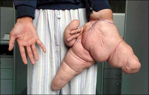 «لوئی هیوآ» از بیماری نادری موسوم به Macrodactyly رنج می برد که به موجب آن، یک بخش از بدن در اندازه ای غیر معمول رشد کرده و عدم تناسبی محسوس را ایجاد می کند. آقای هیوآ به همین خاطر، در تابستان 2007 در یکی از بیمارستان های شانگهای بستری شد. انگشت شست دست چپ وی 26 سانتی متر و انگشت اشاره اش نزدیک به 30.4 سانتی متر بود. در سال 2007 پس از یک جراحی 7 ساعته، حدود 5 کیلوگرم گوشت از دستان او برداشته و دستش به حالت طبیعی خود بازگشت.