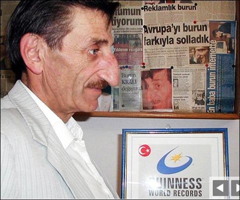 «مهمت اوزیورک» در سال 1949 در ترکیه به دنیا آمده است و در سال 2007 رکود دار بلندترین بینی در جهان به شمار می رفت. بینی وی 8.8 سانتی متر بود. اما مرد پاکستانی تبار دیگری به نام «فایضن آقا» توانست با بینی 12.19 سانتی متری خود، رکود وی را شکسته و نام خود را در کتاب گینس ثبت کند.