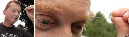 «فرانک آمس» در سال 2013 توانست با موهای 9.6 سانتی متری ابروهای خود، نامش را در گینس ثبت کند.