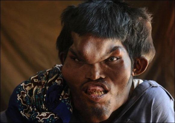 «ساین ممتاز» یک مرد پاکستانی است که از کودکی از سندروم پروتئوس رنج می برده که باعث شده تا صورتی دفرمه و جمجمه ای بزرگ تر از حد معمول داشته باشد.