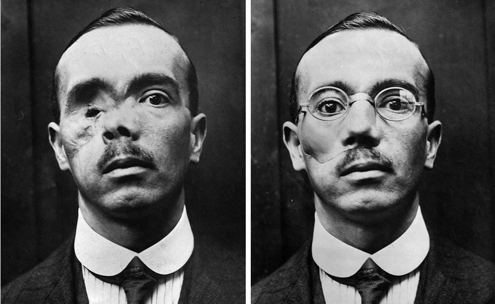 ۲۴ تصویر تکان دهنده از خطوط مقدم جنگ جهانی اول که واقعیت های هولناک این رویداد را نشان می دهند