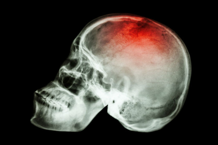 Slip-and-Fall-Accidents-the-Leading-Cause-of-Traumatic-Brain-Injury-w700