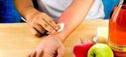 با ۱۱ راهکار غیرمعمول خانگی برای درمان آفتاب سوختگی آشنا شوید