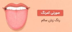 آنچه رنگ زبان و پوشش خارجی آن در مورد وضعیت سلامتی تان می گویند