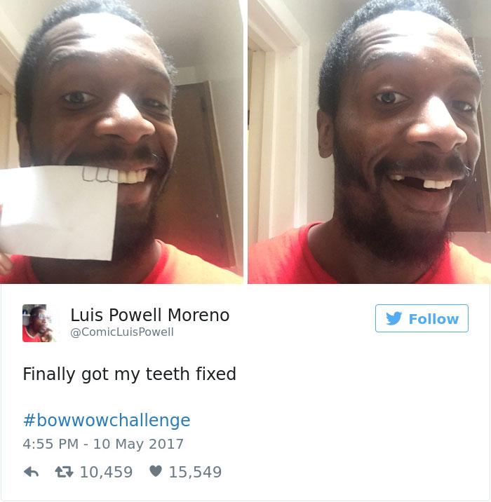 بالاخره دندان هایم را درست کردم. #BowWowChallenge