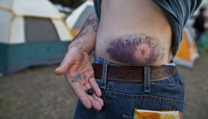 PIC of rubber bullet wound by guy helping scott olsen-w700