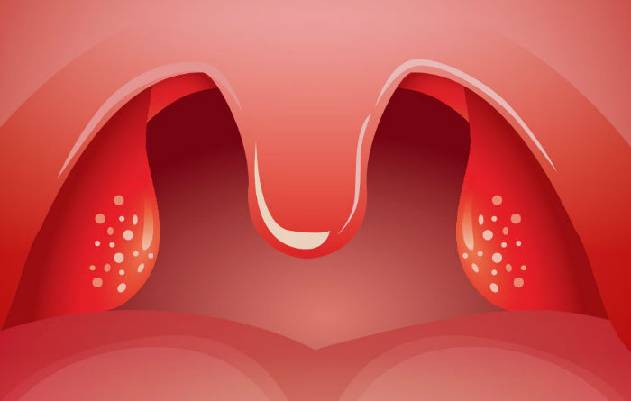 3-signs-your-tonsils-could-be-behind-your-health-problems-w700