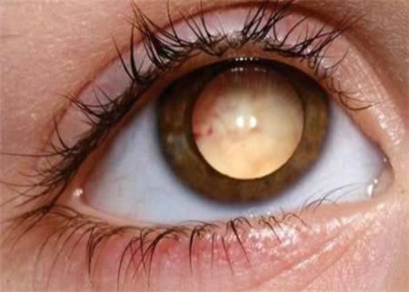 a98557_eye_7-retina-cancer-w700