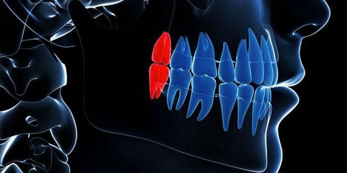 wisdom-teeth-w700