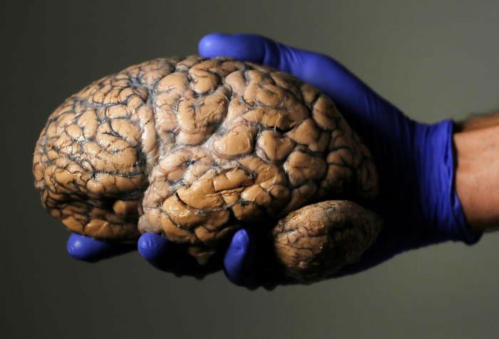 محقق بلژیکی «جرئون شورمانس»، مغز انسان را در دست خود گرفته است. این فقط بخشی از مجموعه متشکل از 3 هزار مغز انسانی در بیمارستان روانی در شهر دافل در بلژیک است که قرار است آزمایش آن ها افق های تازه ای را در راستای بیماری های روحی و روانی پدیدار نماید.