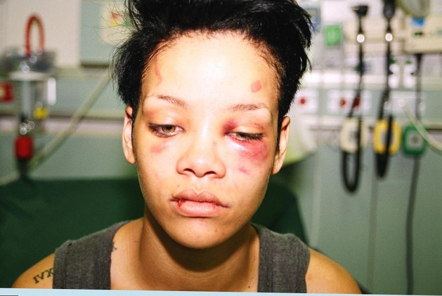 در سال 2009 میلادی، ریحانا وی نتوانست در پنجاه و یکمین مراسم جوایز گرمی حاضر شود. بعدها اعلام کرد که دلیلش این بوده که کریس براون، نامزدش، او را مورد ضرب و شتم قرار داده است. در دادگاه رسیدگی به این شکایت، براون مجرم شناخته شد.
