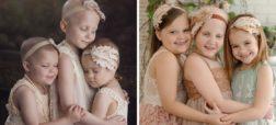 نگاهی به عکس های قبل و بعد کسانی که با سرطان مبارزه کردند