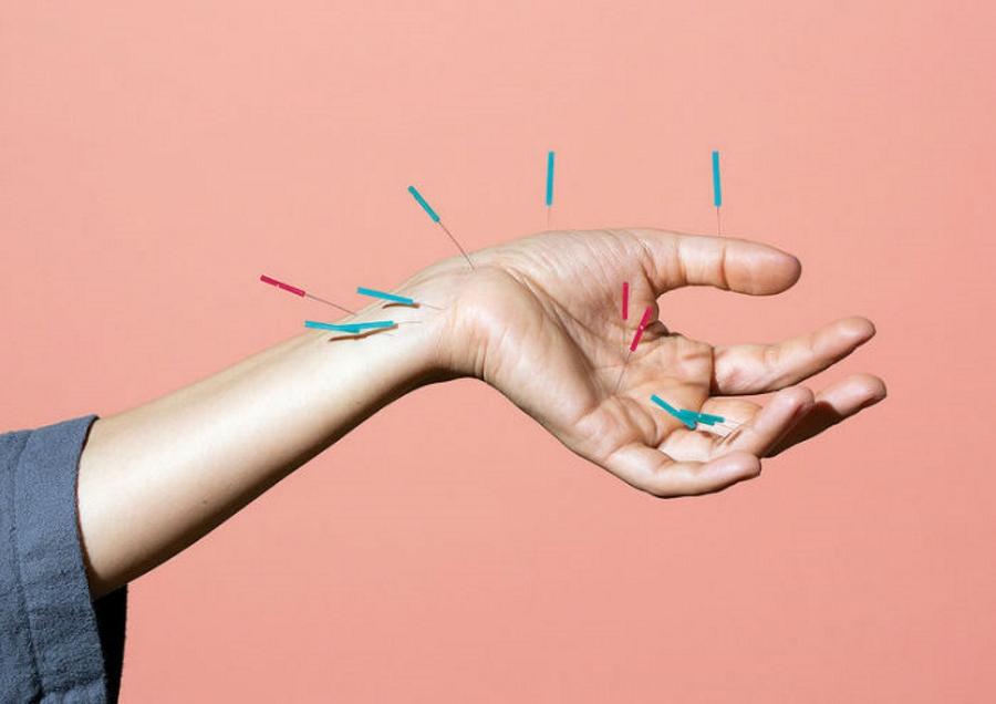 موثر بودن طب سوزنی در آزاد کردن تسکین دهنده های درد در بدن تایید شده است