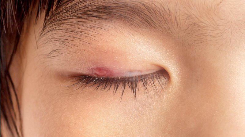 %D9%82%D8%B1%D9%85%D8%B2%DB%8C %DA%86%D8%B4%D9%85 1 - دلیل قرمز شدن چشم ها چیست و چگونه می توان آن ها را درمان کرد؟