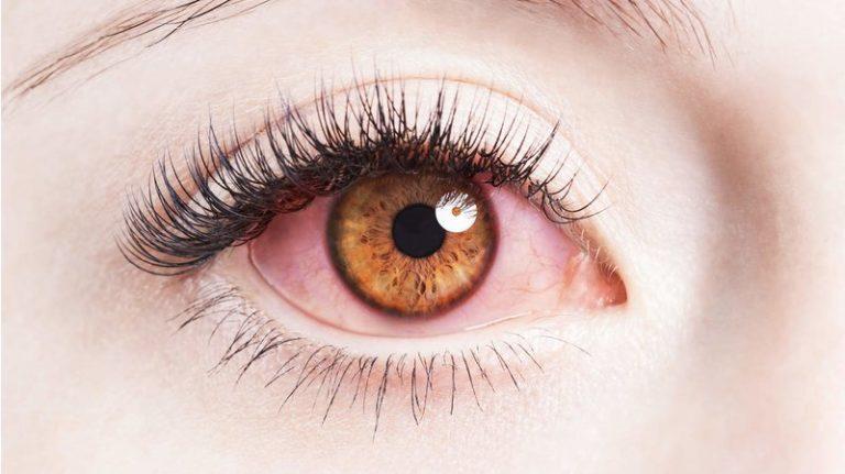 چرا چشم ها قرمز می شوند و چگونه می توان آن ها را درمان کرد؟