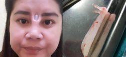جراحی ناموفق بینی منجر به شاخ درآوردن زنی در تایلند شد
