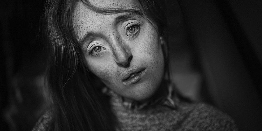 زنانی با چهره های غیر معمولی که استانداردهای زیبایی را دگرگون کردند