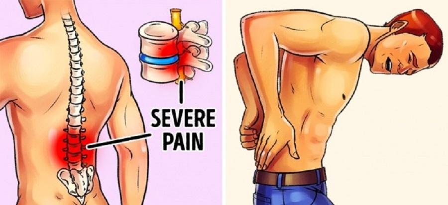 کاهش درد کمر و ستونفقرات با ۵ تمرین ورزشی در خانه