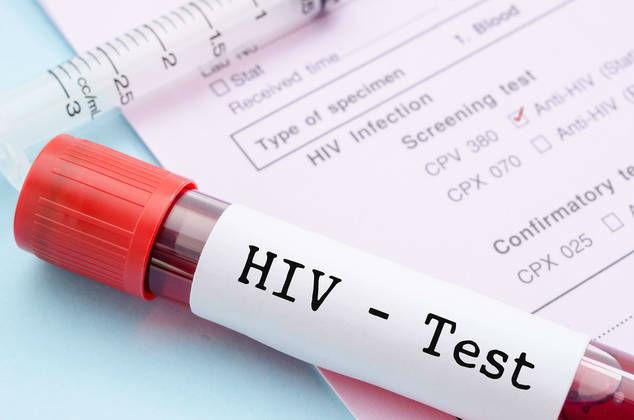 رویکرد «شوک و مرگ»؛ روش جدیدی که انسان را به درمان ایدز بسیار نزدیک ساخته است