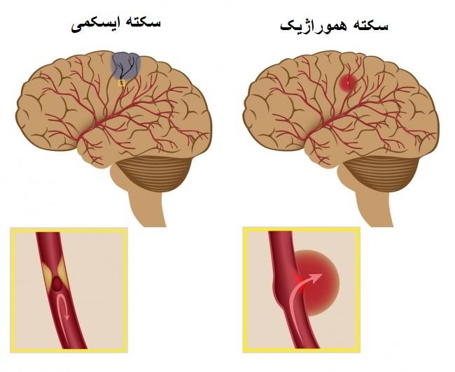 با نشانههای سکته قلبی، ایست قلبی و سکته مغزی آشنا شوید
