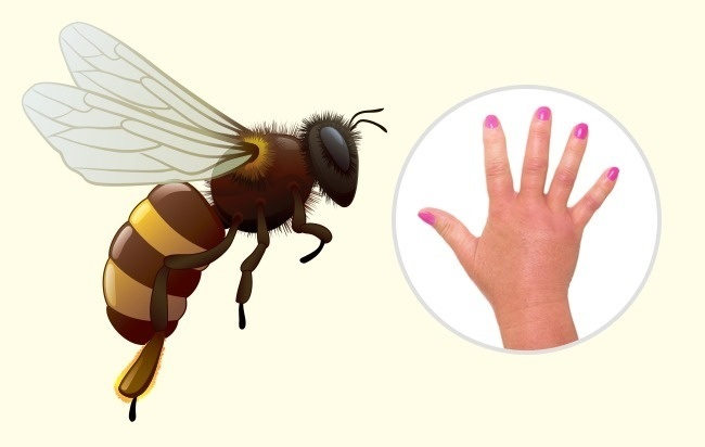 10 جای نیش حشرات که هر کسی باید آنها را بشناسد