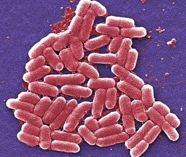 10282013 recode روزیاتو: هر آنچه که باید در مورد سندروم همولیتیک اورمیک (HUS) و درمان آن بدانید اخبار IT