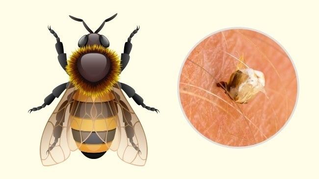 2 14 روزیاتو: ۱۰ جای نیش حشرات که هر کسی باید آنها را بشناسد اخبار IT