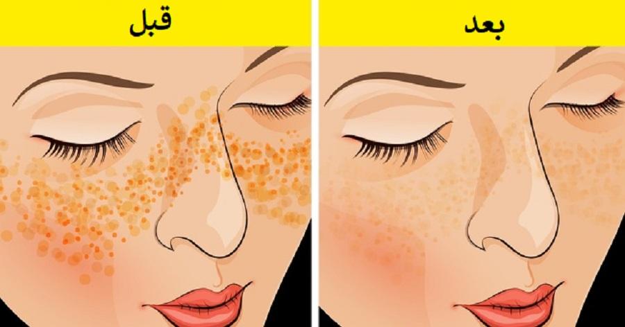 برطرف کردن مشکلات پوستی با ماسک خانگی