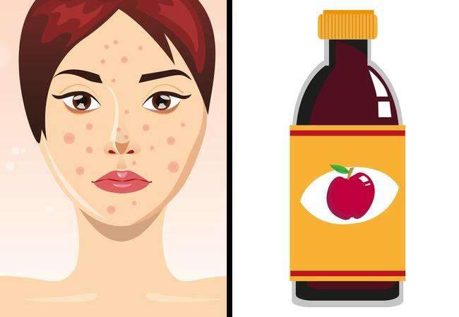 آموزش ساخت 7 نوع ماسک خانگی برای برطرف کردن مشکلات پوستی